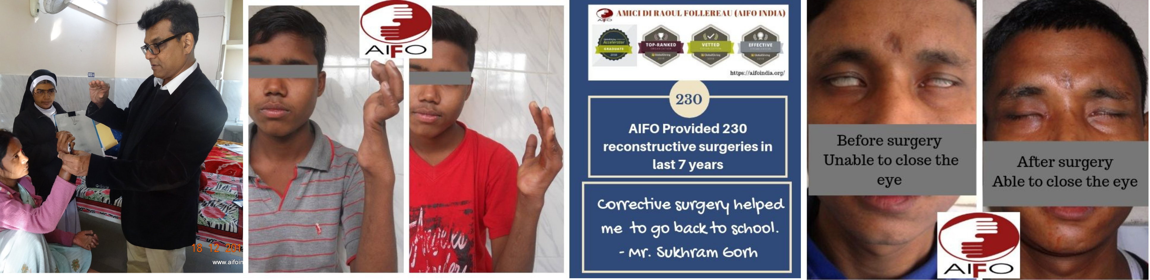 Support for corrective surgery and ulcer care for persons living with leprosy deformity