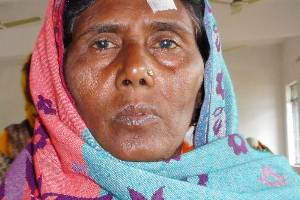 Gift Sight for Sponsoring a Cataract Surgery